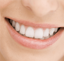 Best Teeth Whitening Dentistry in Narre Warren